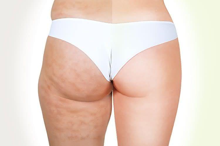 Elimine as celulites da perna e bumbum com passos simples